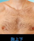 メンズ胸上下脱毛