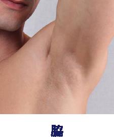男の手指+手の甲脱毛